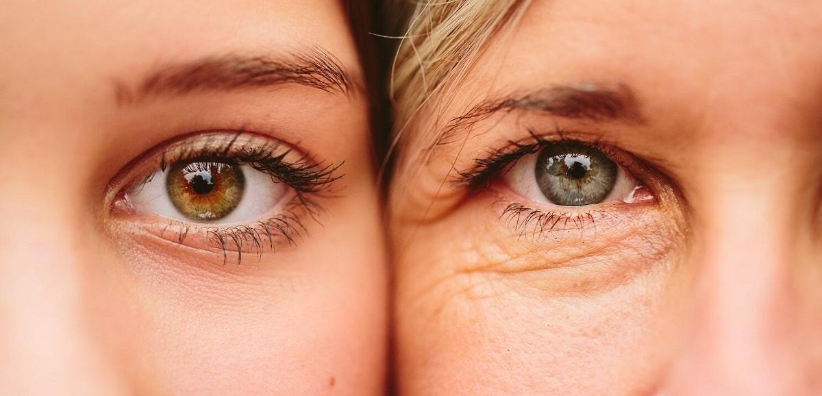 بهترین درمان های خانگی برای پیشگیری و درمان چروک دور چشم