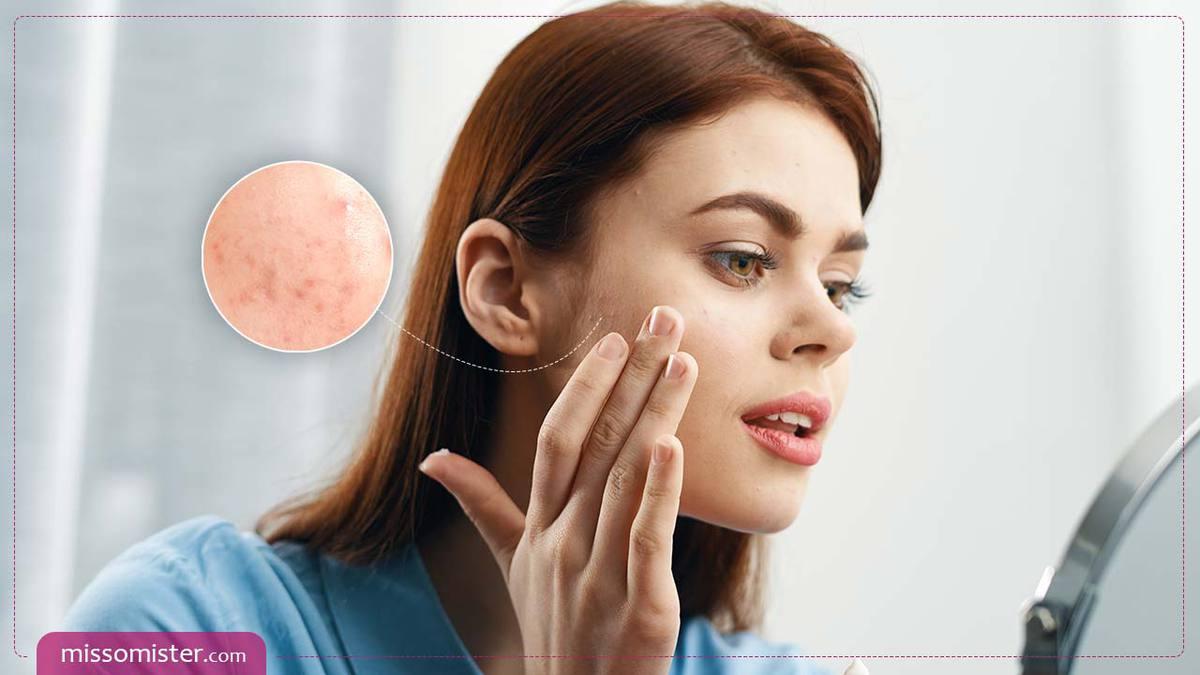 هر چیزی که لازم است درباره انواع جوش صورت و درمان قطعی هر کدام بدانید