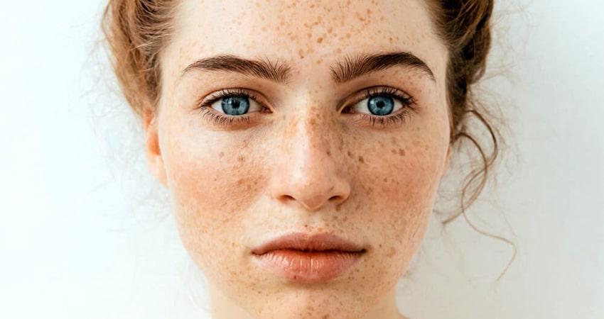 درمان لکه های قهوه ای روی پوست