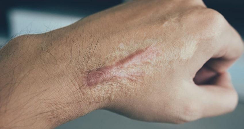 اسکار کلوئید و هیپرتروپیک از بین بردن جای زخم جدید و کهنه