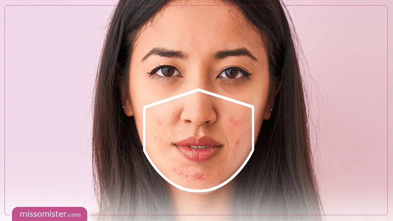 آکنه ماسک چیست و چه کنیم تا در هنگام ماسک زدن جوش نزنیم؟