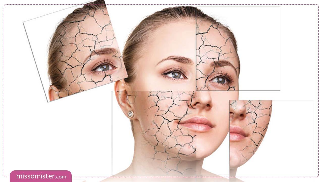 چگونه و با چه روش هایی به مراقبت از پوست خشک خود بپردازیم؟