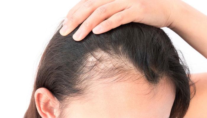 ارتباط ریزش مو و آلودگی هوا