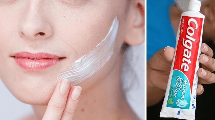 از بین بردن جوش زیر پوستی با خمیر دندان