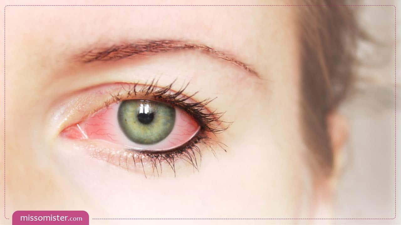 روش های درمان حساسیت چشم به لوازم آرایش کدامند؟