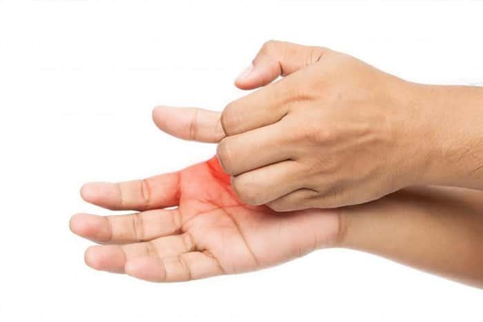 نازک شدن پوست کف دست