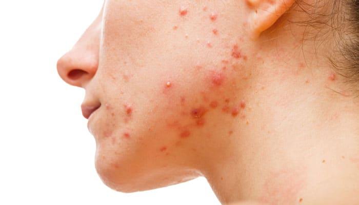 تاثیر استرس بر سلامت پوست