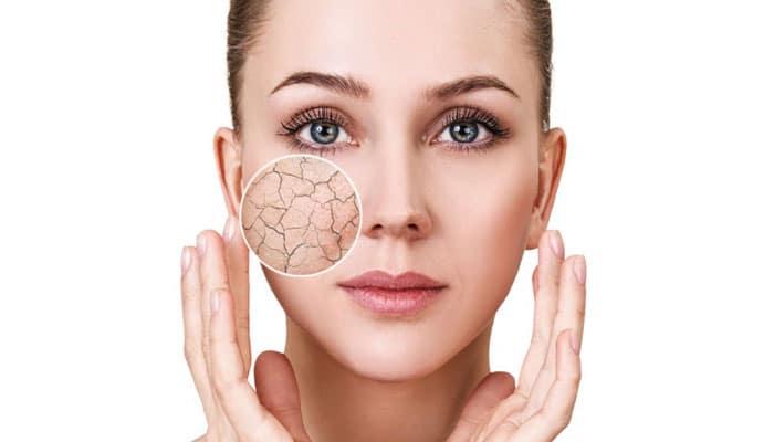 خشک شدن پوست در اثر استرس