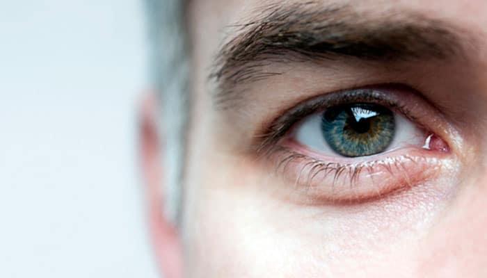 پف کردن زیر چشم