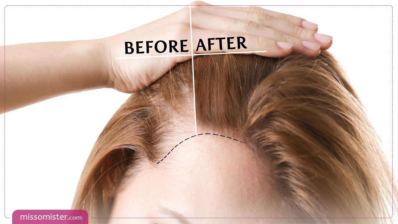 مهم ترین علت نازک شدن مو + موثرترین درمان های خانگی